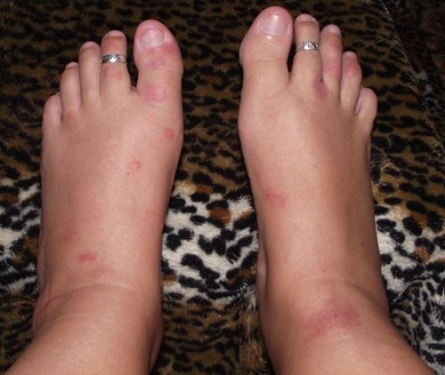 06. My Aching Cankles